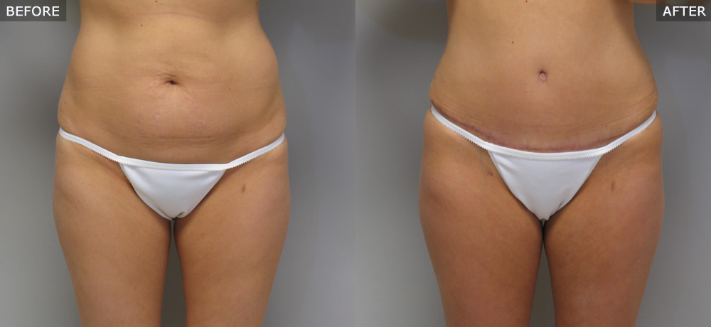 Abdominoplasty (Tummy Tuck) Before & After Photos example one front