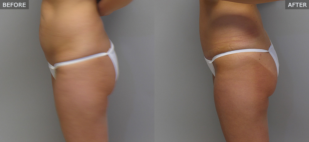 Abdominoplasty (Tummy Tuck) Before & After Photos example one side