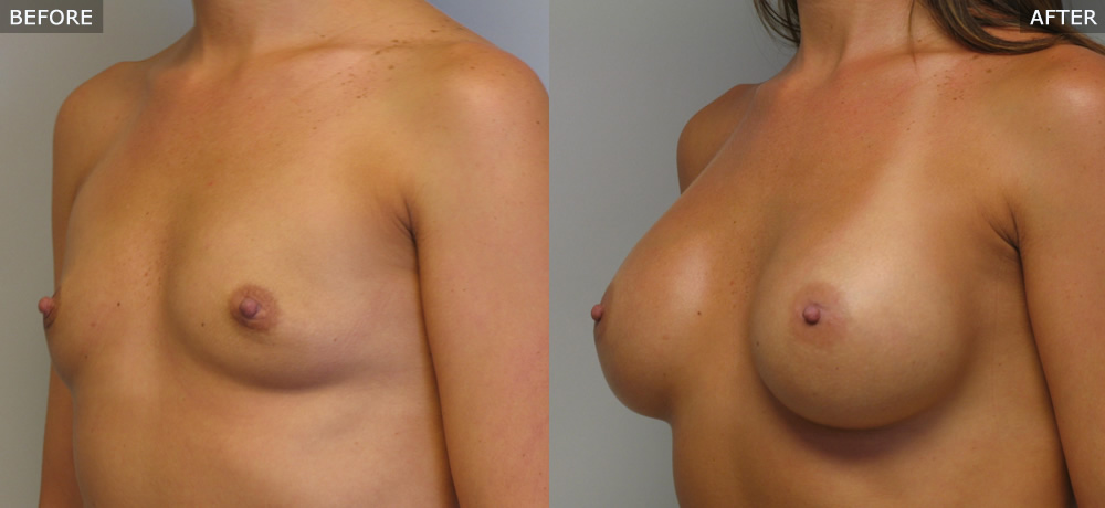 breast augmentation springfield mo before and after photos example two