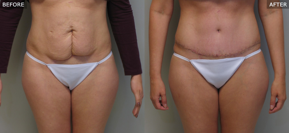 Abdominoplasty (Tummy Tuck) Before & After Photos example two front