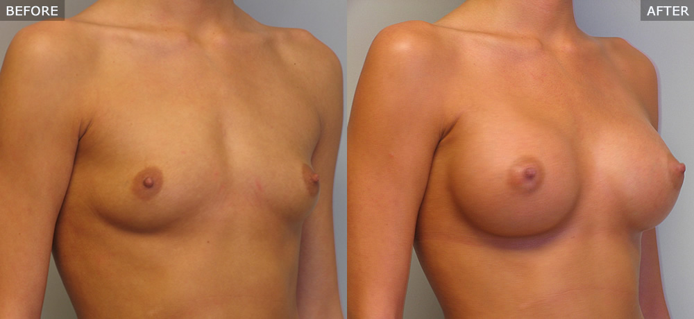 breast augmentation springfield mo before and after photos example one