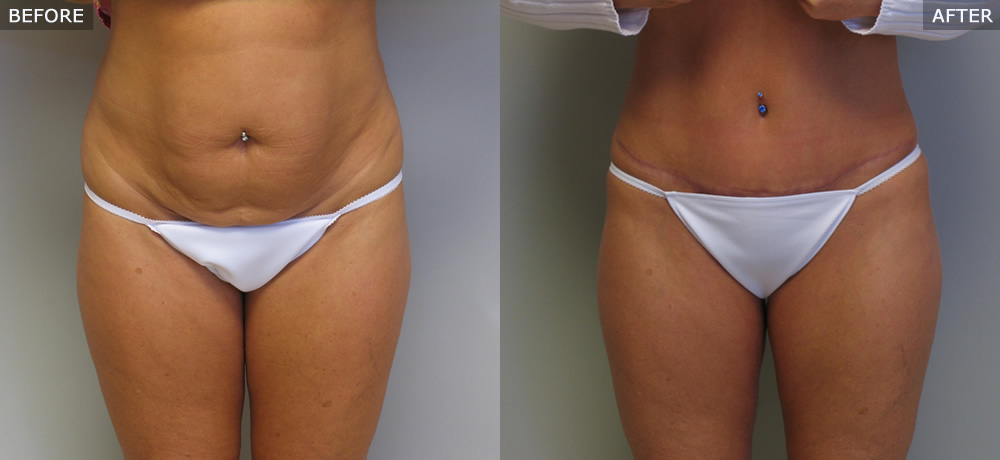 Abdominoplasty (Tummy Tuck) Before & After Photos example three front