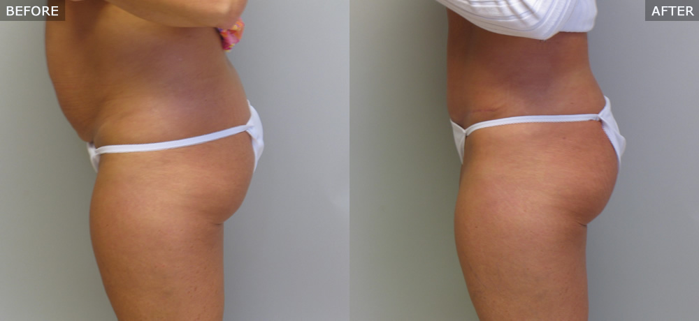 Abdominoplasty (Tummy Tuck) Before & After Photos example three side