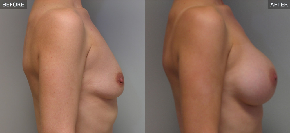 breast augmentation springfield mo before and after photos example three