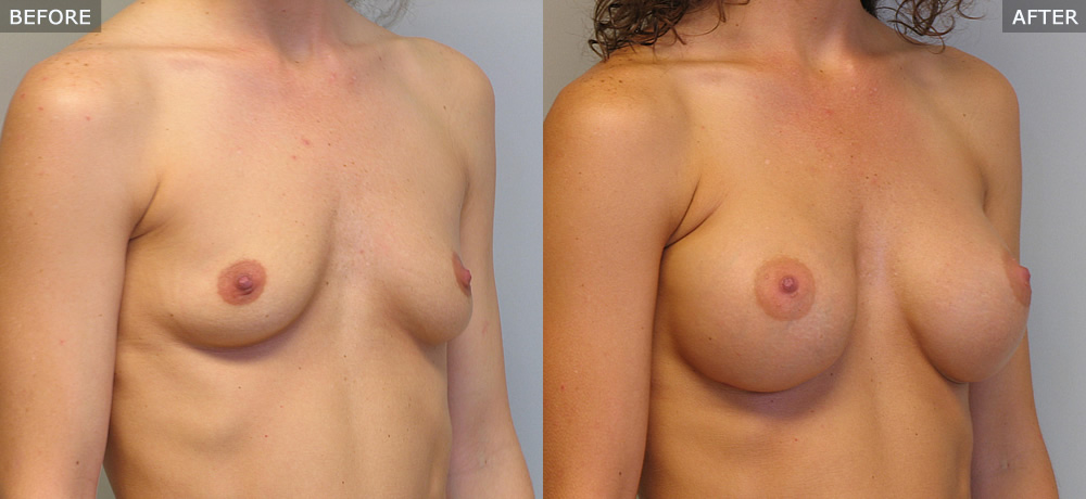 breast augmentation springfield mo before and after photos example four