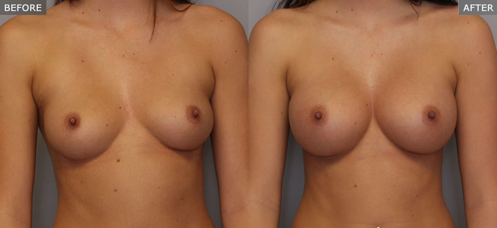 Photo of Breast Augmentation Front View
