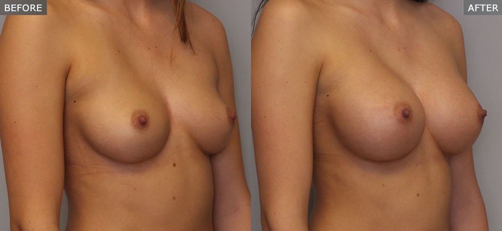Photo of Breast Augmentation Before and After Side View Example 5