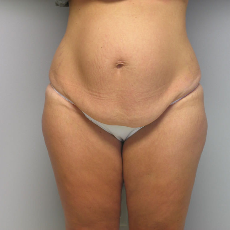 body-lift-springfield-mo-example-1-front-before