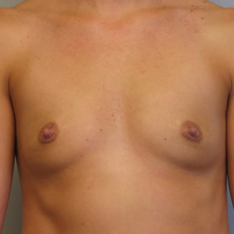 breast-augmentation-springfield-mo-before-and-after-photos