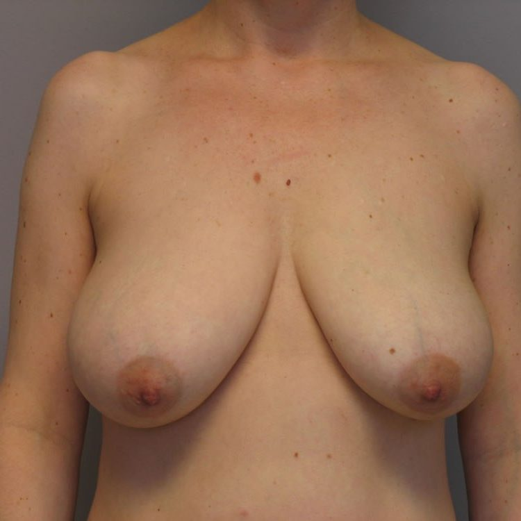 breast-lift-springfield-mo-example-1-front-before