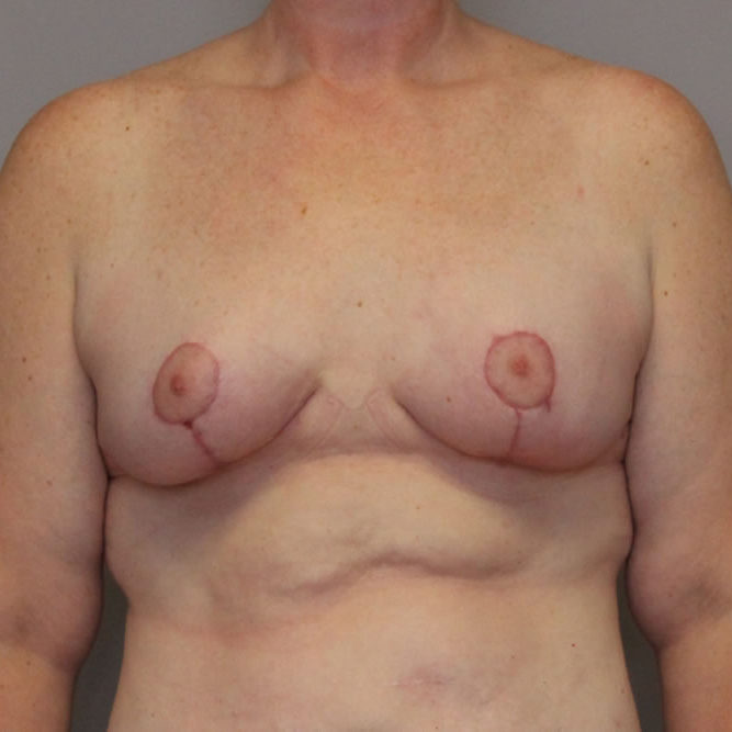 breast-lift-springfield-mo-example-3-front-after