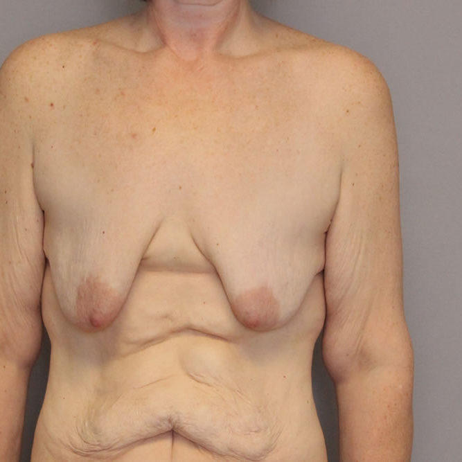 breast-lift-springfield-mo-example-3-front-before