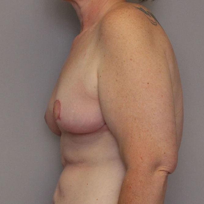 breast-lift-springfield-mo-example-3-side-after