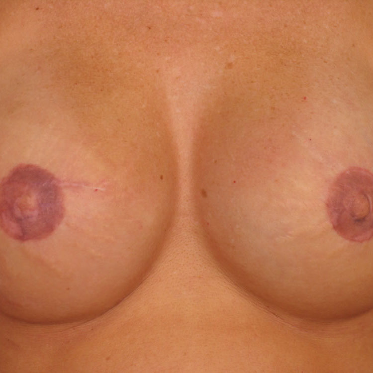 breast-reconstruction-springfield-mo-example-1-front-after