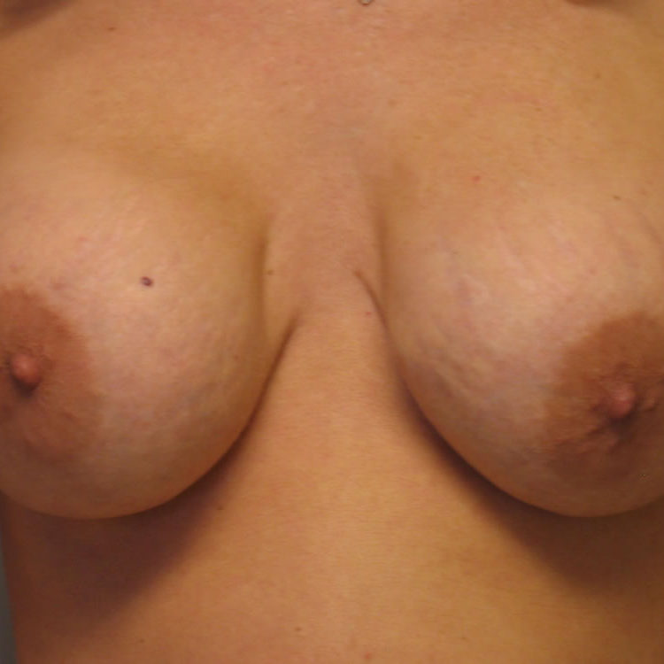 breast-reconstruction-springfield-mo-example-1-front-before
