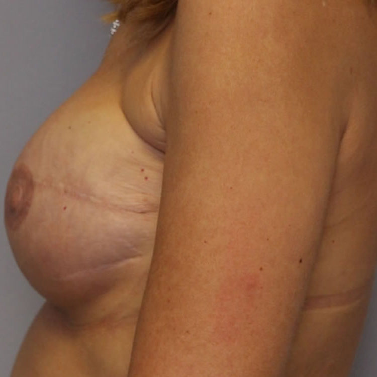 breast-reconstruction-springfield-mo-example-1-side-after-v2-crop