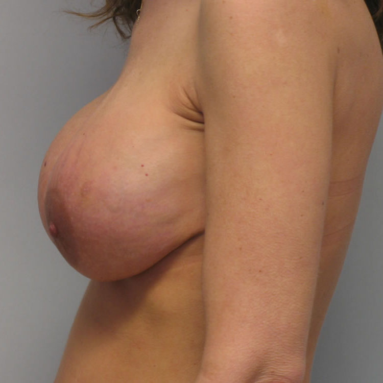 breast-reconstruction-springfield-mo-example-1-side-before