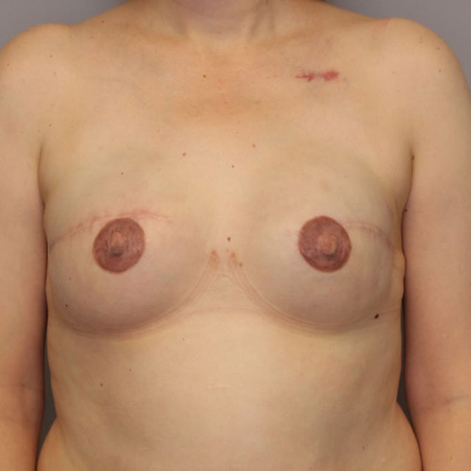 breast-reconstruction-springfield-mo-example-2-front-after