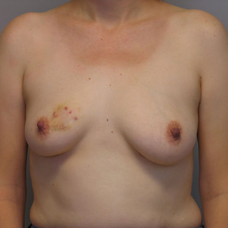 breast-reconstruction-springfield-mo-example-2-front-before