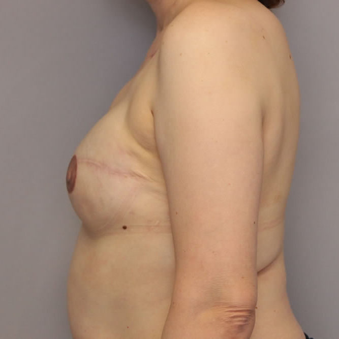 breast-reconstruction-springfield-mo-example-2-side-after-v2-center
