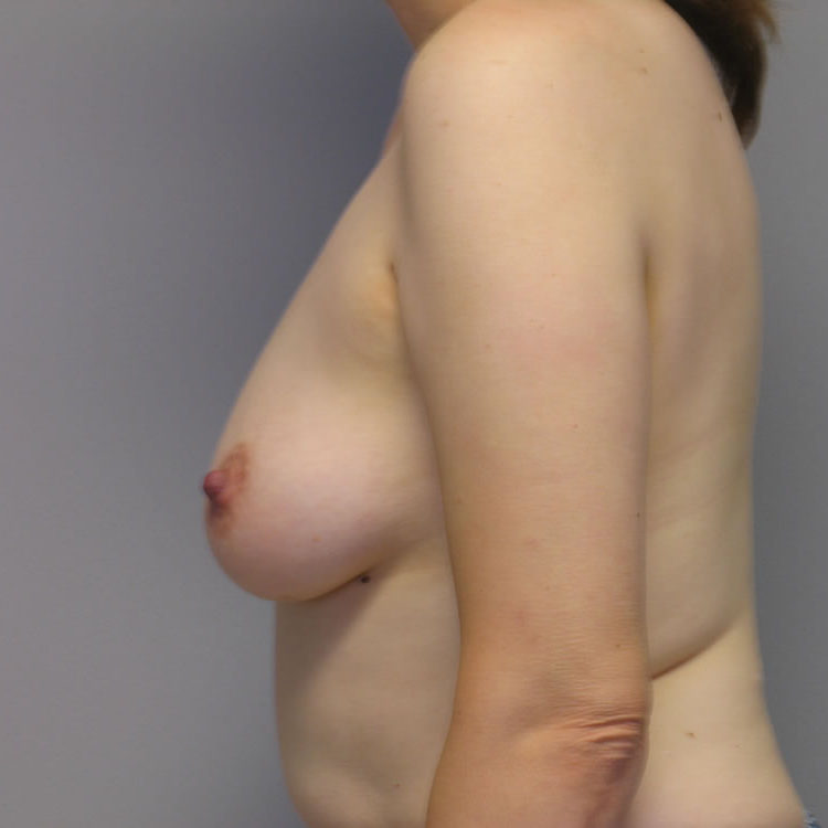 breast-reconstruction-springfield-mo-example-2-side-before