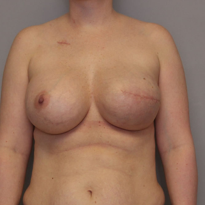 breast-reconstruction-springfield-mo-example-3-front-after