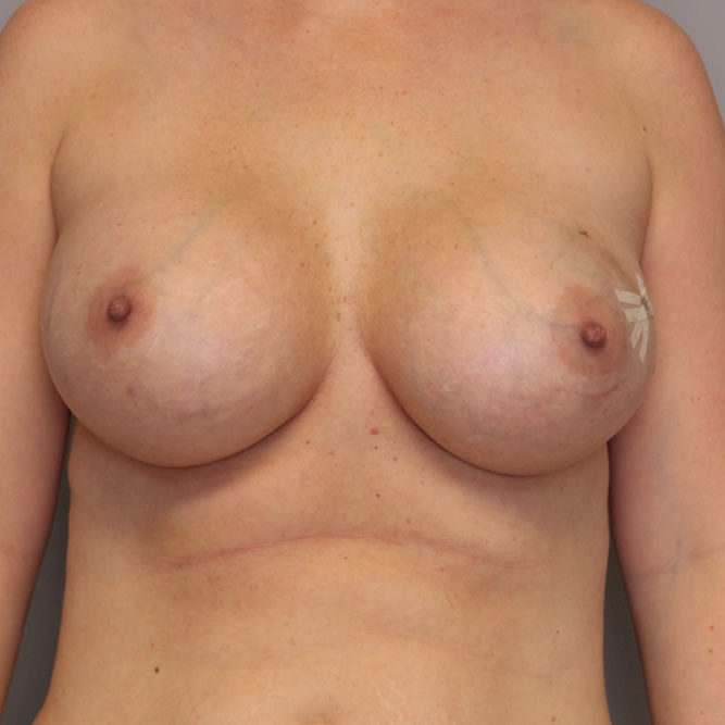 breast-reconstruction-springfield-mo-example-3-front-before