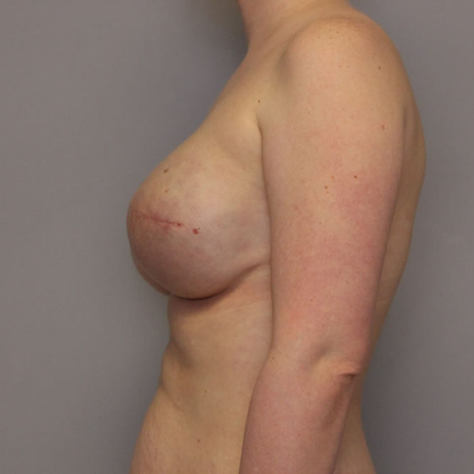 breast-reconstruction-springfield-mo-example-3-side-after