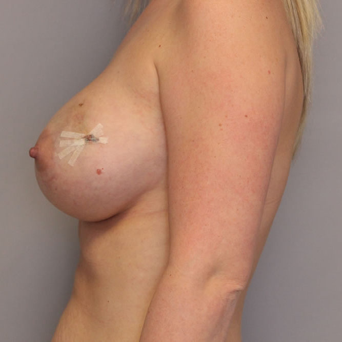 breast-reconstruction-springfield-mo-example-3-side-before