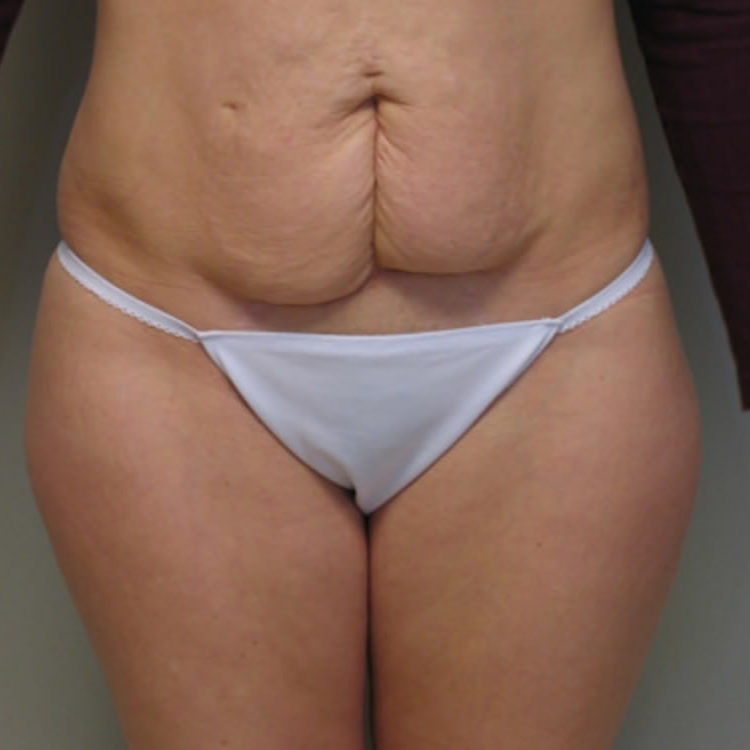tummy-tuck-springfield-mo-before-and-after-photos